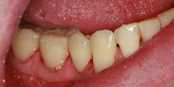 cavity-bonding-after