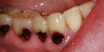 cavity-bonding-before