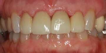 ceramic-crowns-after-2