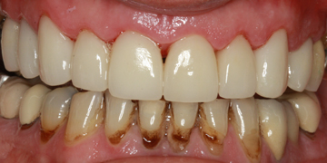 ceramic-crowns-after