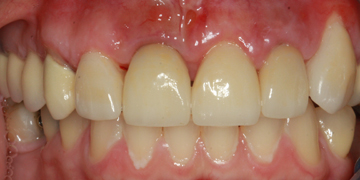 ceramic-crowns-and-porcelain-veneer-after