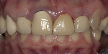 ceramic-crowns-and-porcelain-veneer-before