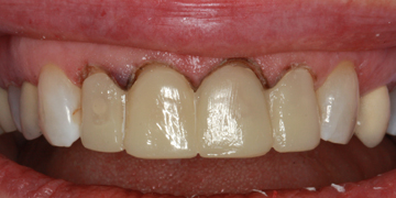 ceramic-crowns-before-2