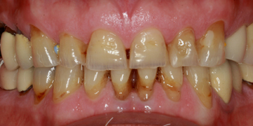 ceramic-crowns-before