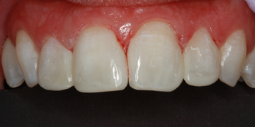 cosmetic-bonding-after