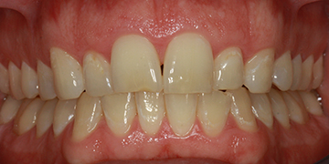 porcelain-veneers-before-3
