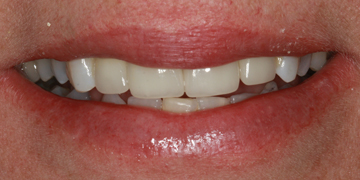 porcelain-crowns-and-implant-after-2