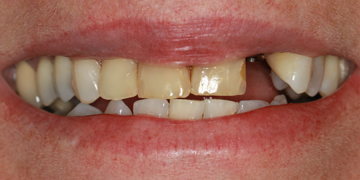 porcelain-crowns-and-implant-before-2