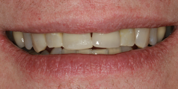 porcelain-crowns-and-implant-before