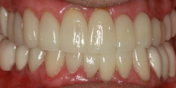 porcelain-veneers-after-3