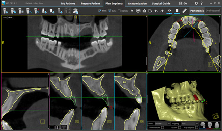 example of dental implants X-ray
