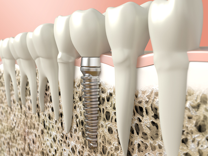 3D image of dental implants in the mouth